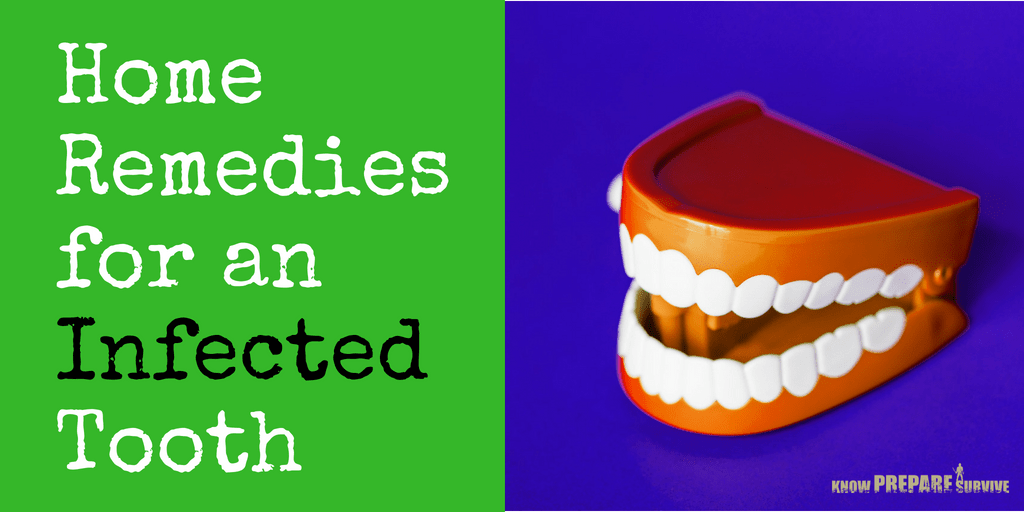 Home Remedies for an Infected Tooth