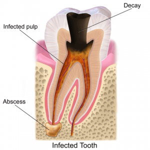 Teeth Decay Infection Abscess