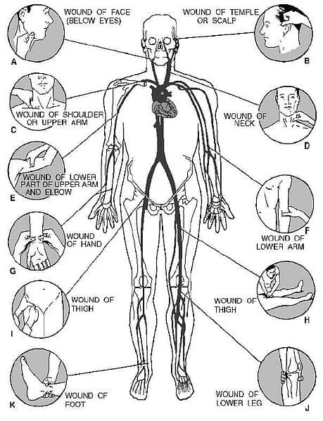 Arterial pressure point diagram how to stop bleeding